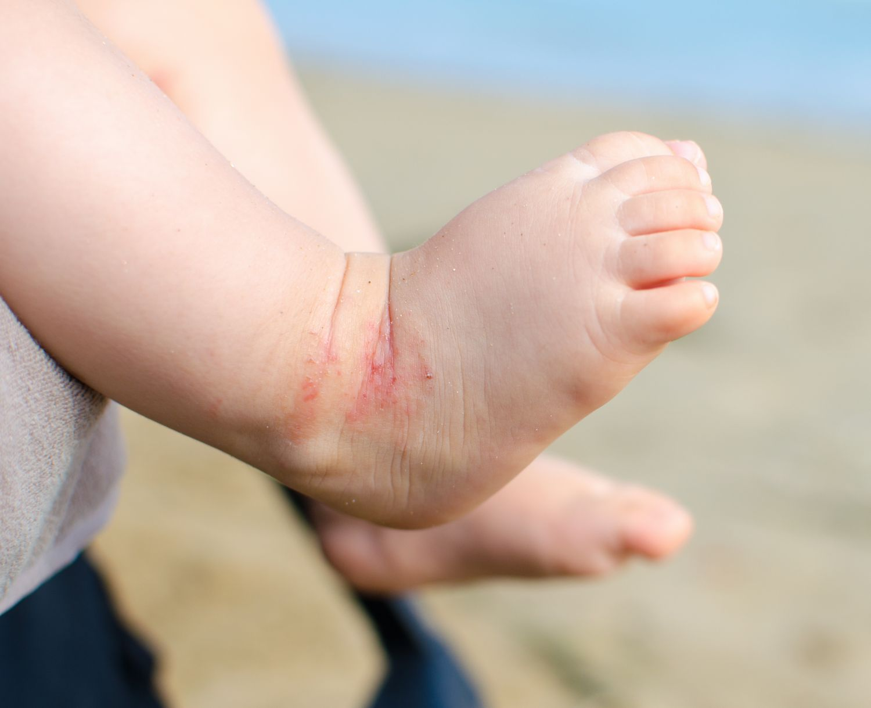 Kinderfuß mit Neurodermitis